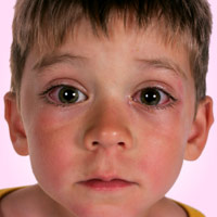 boy with pinkeye